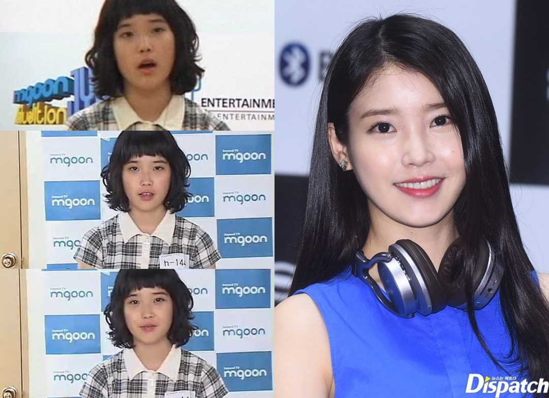iu before after
