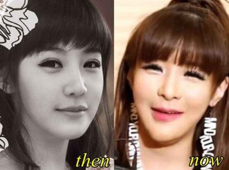Park Boom before and after plastic surgery