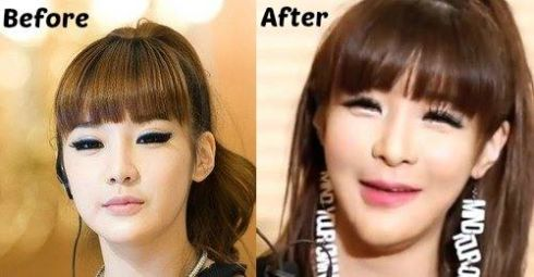 Did 2ne1 Cl Dara Park Bom And Minzy Have Plastic Surgery