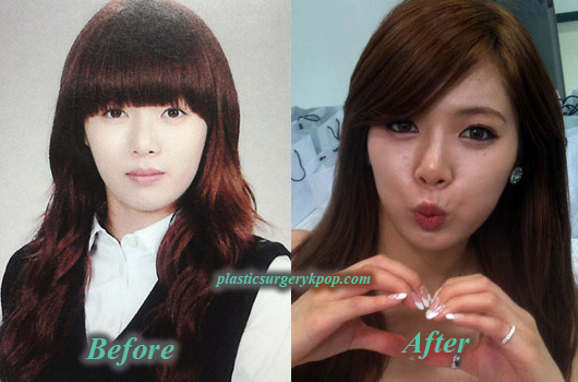 4minute Plastic Surgery Before And After Picture