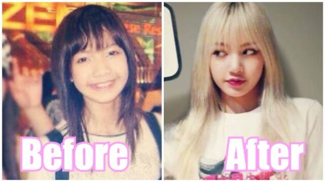 Before And After Blackpink Members Plastic Surgery Channel K Part 2