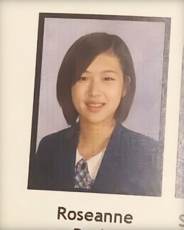 blackpink rose pre debut plastic surgery issue