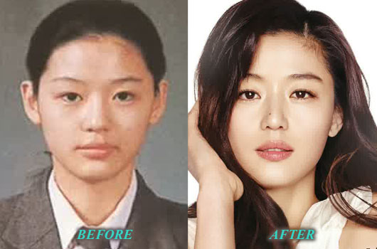 jun ji hyun before and after