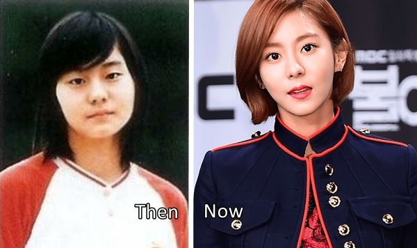 Uee Before and After Plastic Surgery