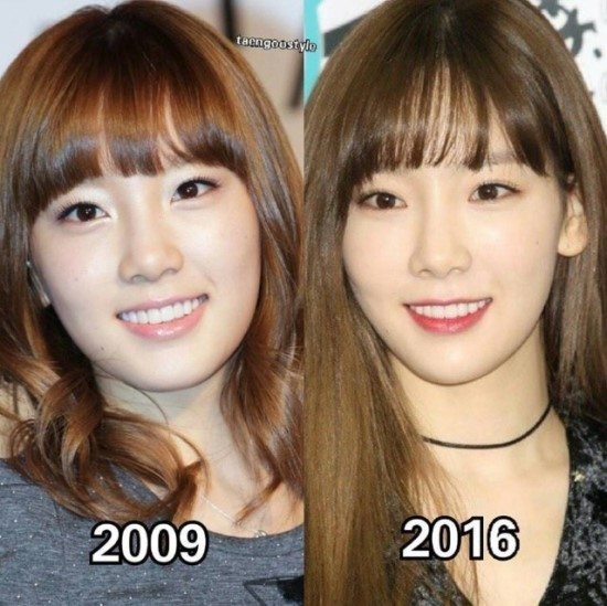 Before And After Did Taeyeon Undergo Plastic Surgery Let S Find