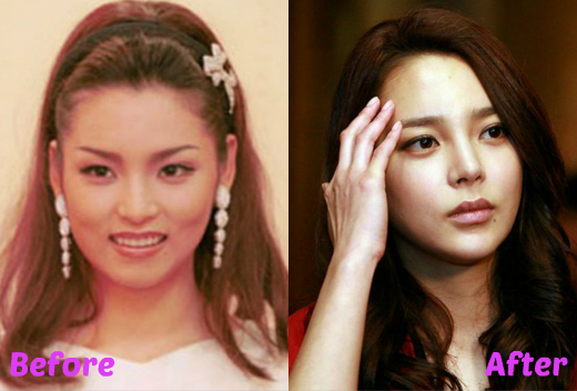 Did Park Si Yeon Undergo Plastic Surgery Let S Compare