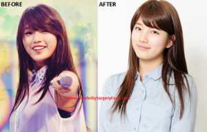 Then And Now Let S See Suzy S Facial Transformation Did